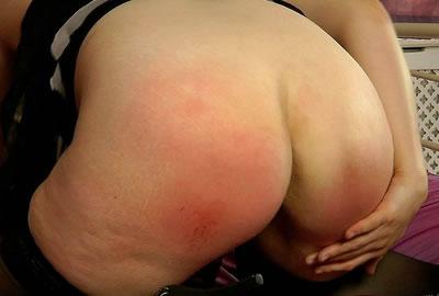 red sore ass close up